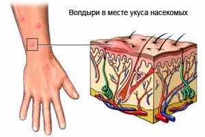 Волдыри на месте укуса - это аллергическая реакция тела