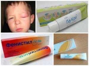 Мази для лечения последствий укусов мошки