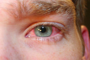 Первый признак укуса - покраснение слизистой