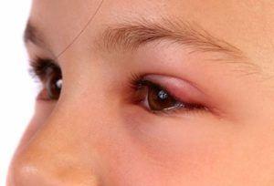 Последствия укуса мошки в глаз