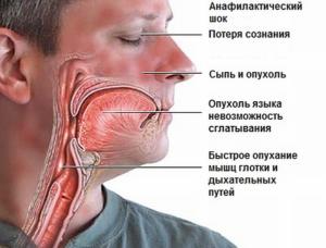 Анафилактический шок может вызвать множество укусов мошек