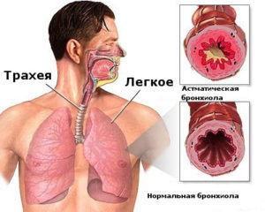 Бронхиальная астма одна из опасных болезней которая может проявится из-за тараканов