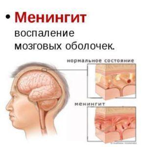 Тараканы могут заразить вас очень тяжёлыми болезнями например менингитом