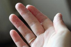 Тараканы объедают эпителий ног или рук пока человек спит